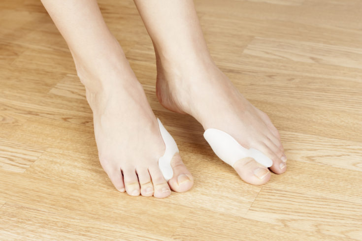 910c8b1f2c7 How To Fix Bunions Without Surgery - Shoeaholics Anonymous Shoe Blog